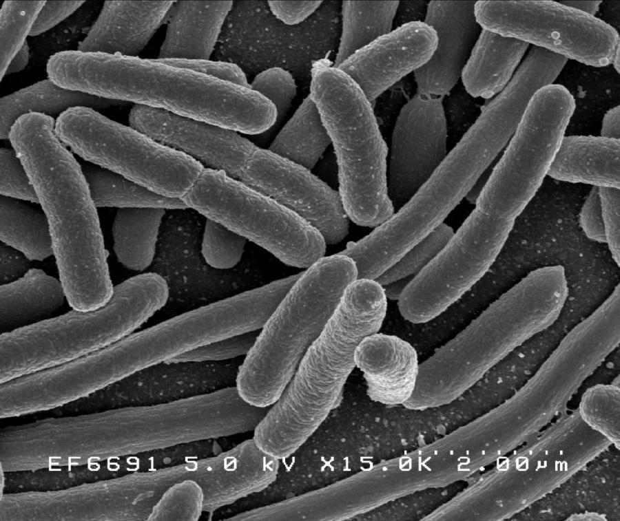 Escherichia coli збільшена 25 000 разів