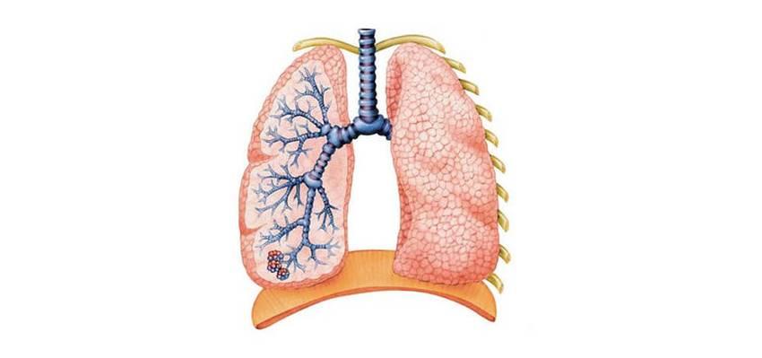 Легені2