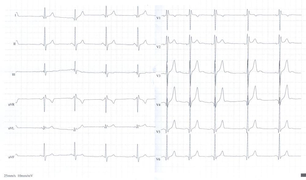 ЕКГ 18 річного пацієнта U хвилі найкраще простежується у відведенні V3