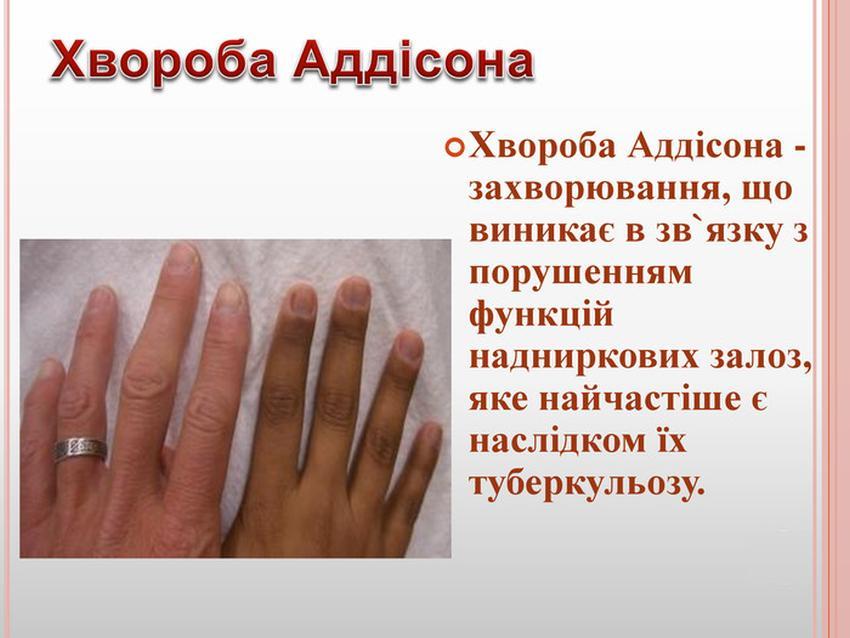 Хвороба Аддісона