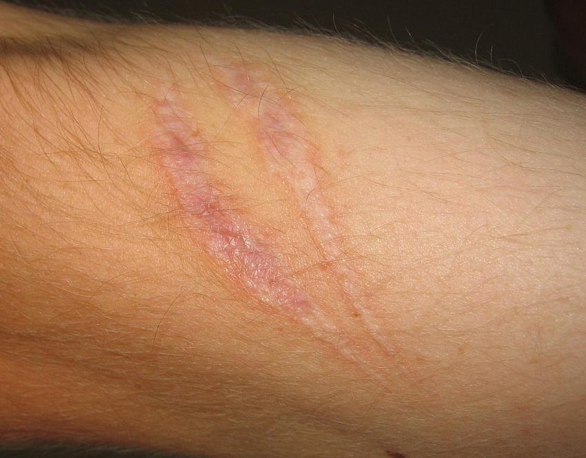 Рубці на шкірі людини