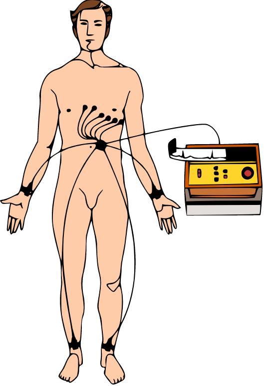 Схема підключення електродів при ЕКГ у 12 відведеннях