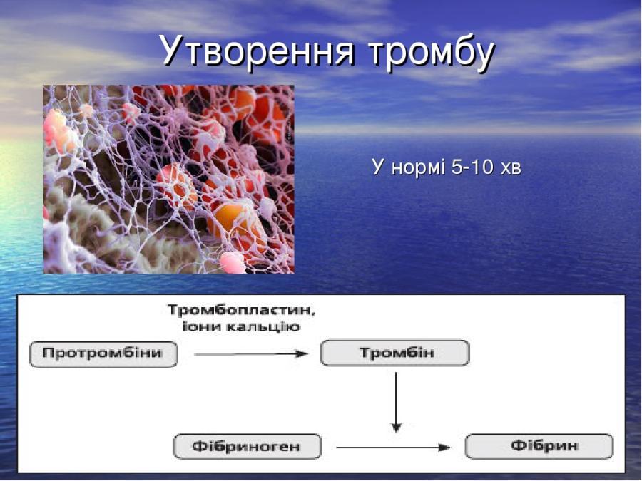 Утворення тромбу