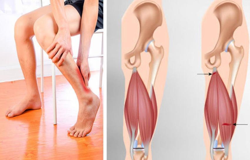 Здоров'я м'язів людини