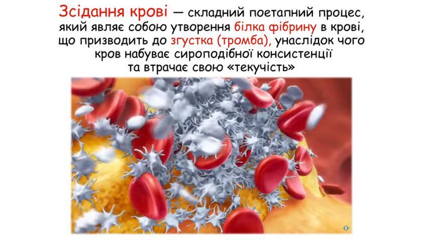Зсідання крові